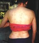 hives_back2